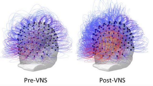 Imagens da atividade cerebral do paciente