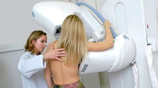 Breast cancer: Scientists hail 'milestone' genetic find