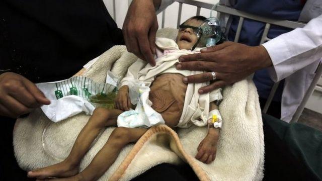 الصراع في اليمن جعل ملايين المواطنين ينزحون داخل البلاد وأدت الحرب إلى انتشار الأمراض وسوء التغذية