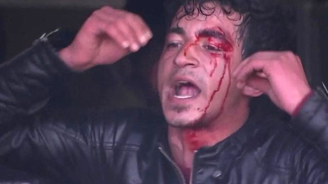 Man with blood on his face.