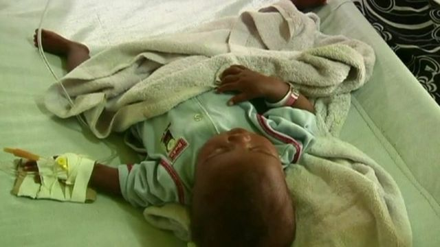 Child suffering from cholera