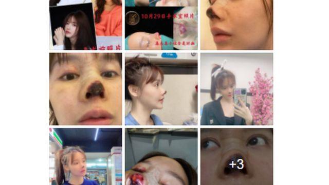 nariz de Gao