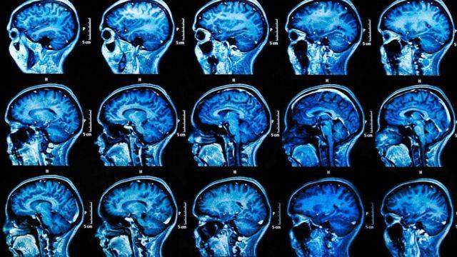 قد يؤدي التعرض لمواقف تتسم بالتوتر والضغط النفسي إلى تنشيط فيروس الهربس