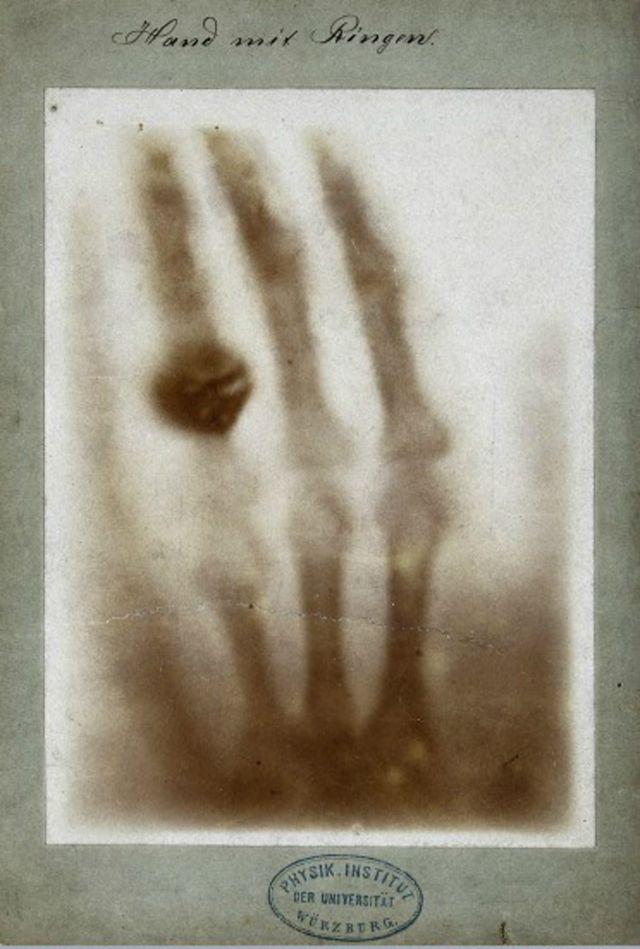 Primera imagen de rayos X