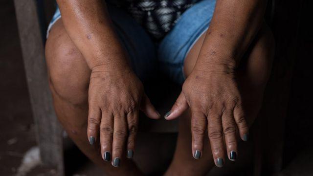 A brasileira Maria do Socorro Silva é destacada no relatório da Global Witness como defensora da terra e alvo de ameaças de morte
