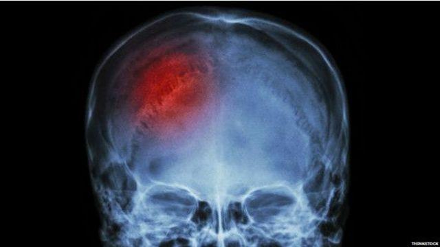 Exame mostra área afetada, sinalizada pela cor vermelha