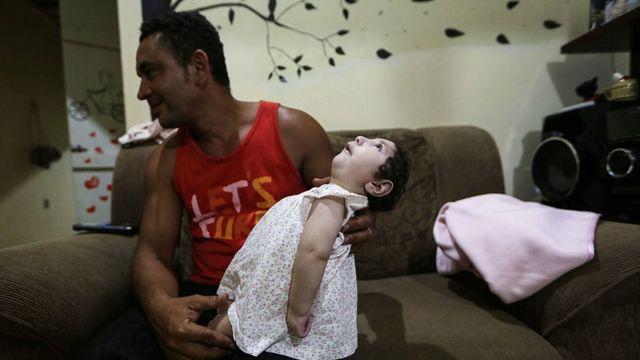 Homem com filha com microcefalia no colo