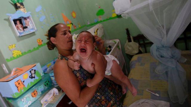 ブラジルでは小頭症の赤ちゃんが増加している