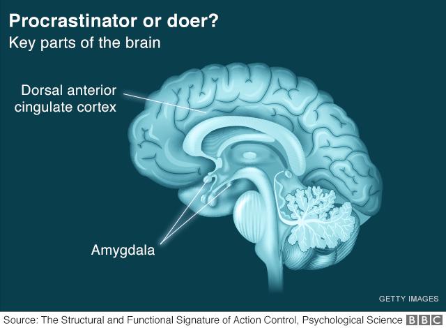 Procrastinator or doer?
