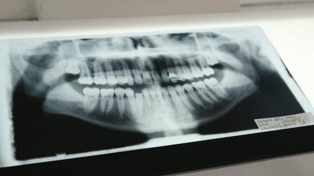 сломанные зубы Алекса