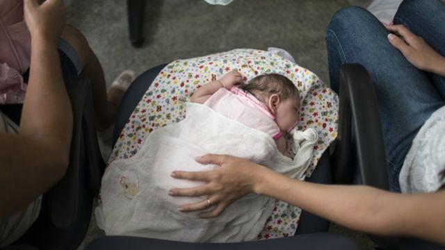 Braziliyada mikroselafiya ilə doğulan uşaqların sayı artır