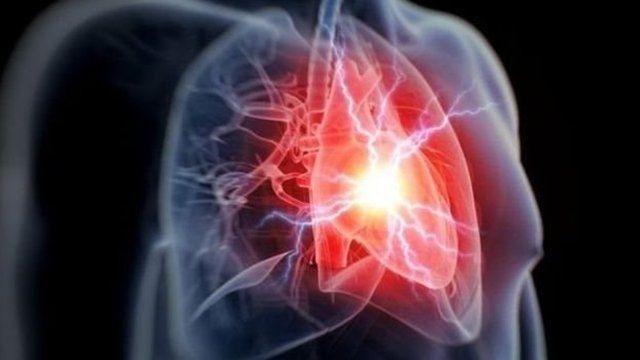 他汀類藥物可以預防患者二次發作心臟病,阿司匹林則有助於患者預防血栓的形成。