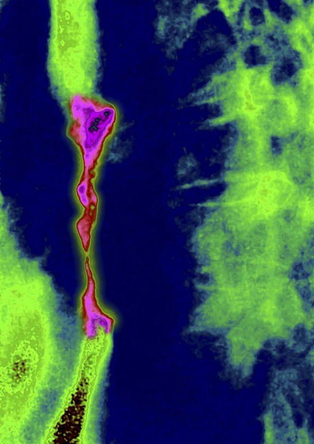 نمای سرطان مری در تصویربرداری