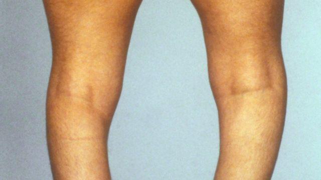 искривленные в результате рахита ноги