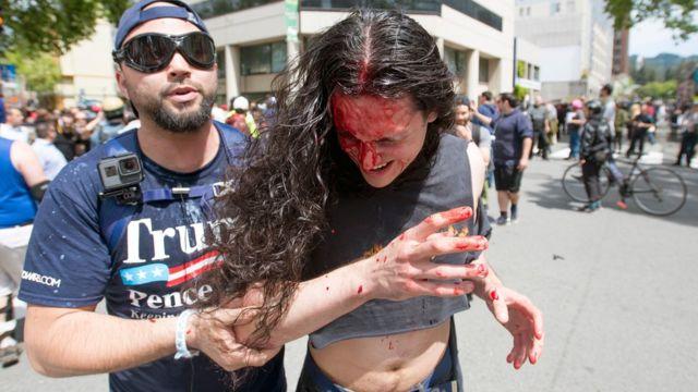 一名示威者扶著另一名血流披面的示威者。