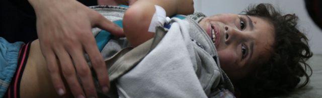 Дитина в лікарні у Східній Гуті