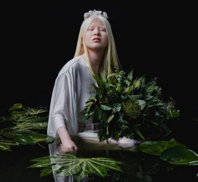 site de rencontre pour albinos)