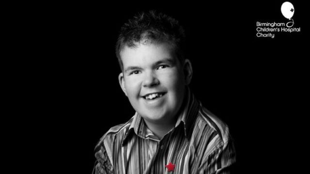 Jordan foi diagnosticado como portador da Síndrome de Klinefelte quando tinha seis semanas de idade