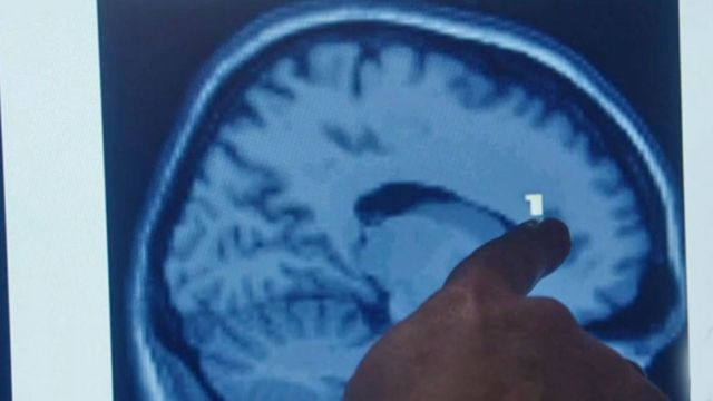 Pantalla con dedo indicando la corteza prefrontal