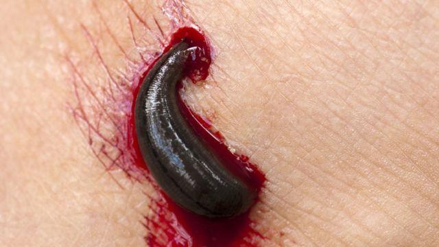 Sanguijuela chupando sangre