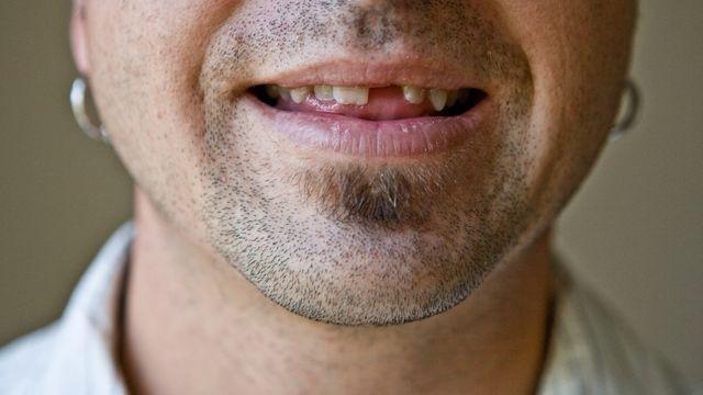 Hombre joven que le falta un diente.