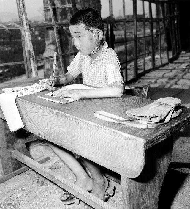 हिरोशिमामा बम विस्फोटमा घाइते एक बालिका सन् १९४६ मा विद्यालयमा अध्ययन गर्दै