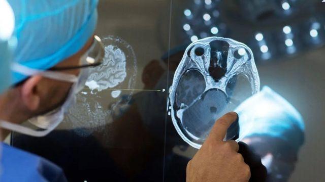 """Стимуляція мозку під час """"операції у свідомому стані"""""""