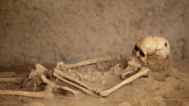 Un esqueleleto con el cráneo trepanado