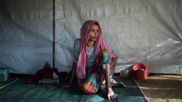 A Rohingya Muslim refugee Nosuba Khatun (40) shows the bullet wound inflicted while fleeing from an attack by the Myanmar military at her shelter in the Kutupalong refugee camp in Cox's Bazar on December 4 2017