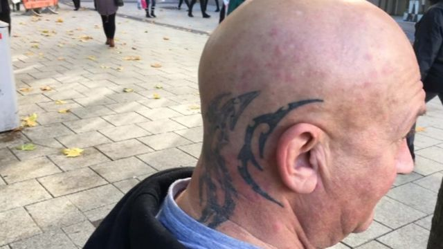 Man with tattoo on his head
