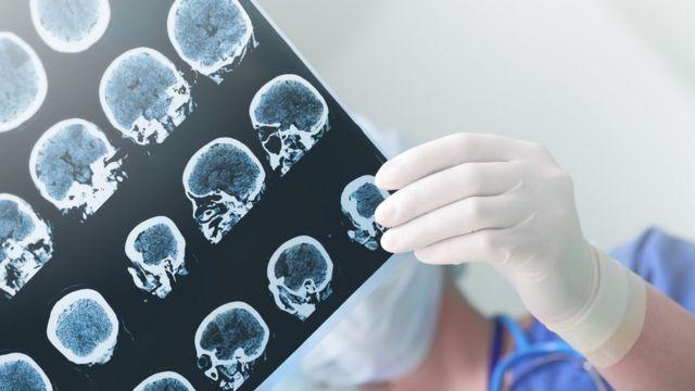 Imágenes de rayos X de un cerebro.
