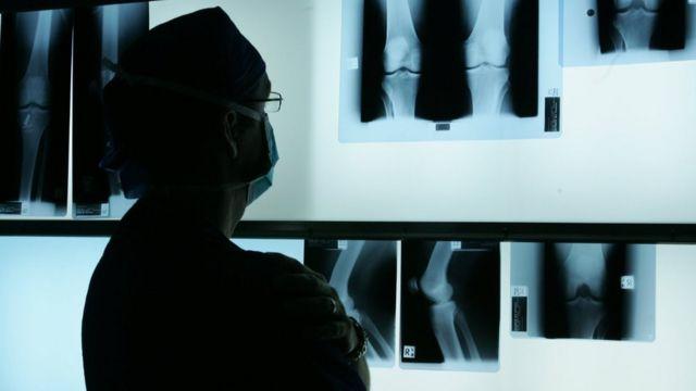 Médico olhando radiografia
