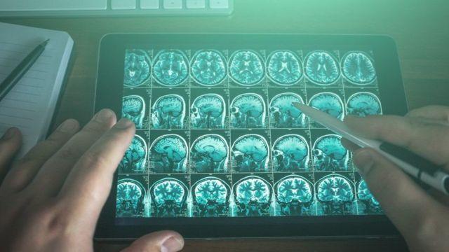 صورة مسح ضوئي للمخ