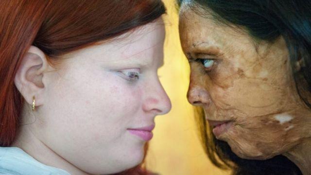 Silvia asitli saldırıya uğrayan kadın ile ayrımcılığa maruz kalan bir albino kadını birlikte fotoğrafladı.