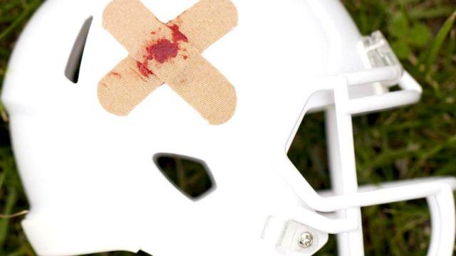 Поврежденный шлем футболиста