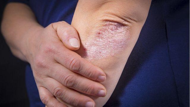 Endemica definicion biolgiai psoriasis