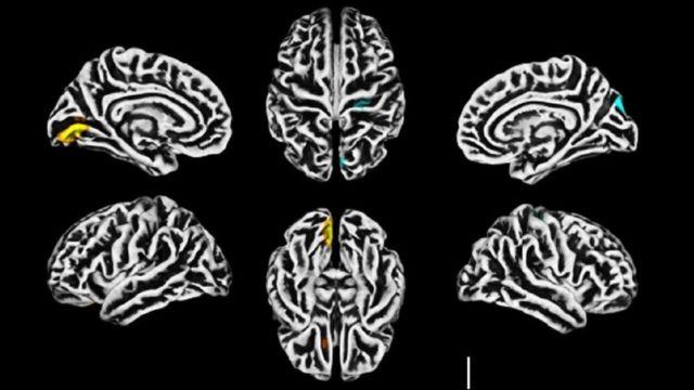 Ressonância magnética mostra alterações na estrutura do córtex cerebral; em amarelo, a redução na espessura cortical; em azul, o aumento da espessura