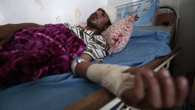 A man lies in a hospital bed after he was injured in Saudi-led airstrikes targeting a funeral hall, in Sanaa, Yemen