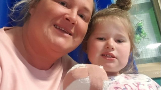 NHS praised after Newport girl's finger sewn back on
