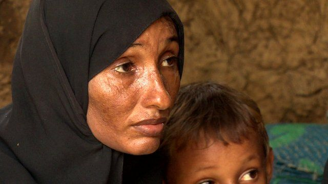 A woman displaced by the crisis in Yemen