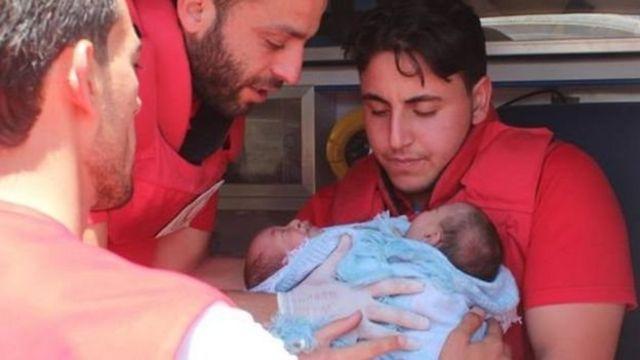 Los siameses fueron evacuados gracias a pedidos de organizaciones como la Media Luna Roja Árabe y la Organización Internacional de Salud.