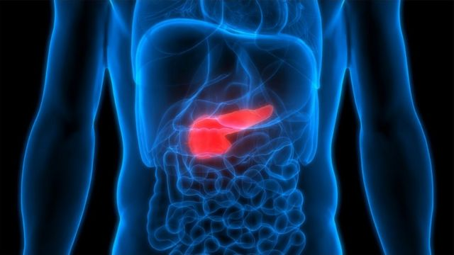 Pancreatic cancer: NI patients to trial new exercise scheme