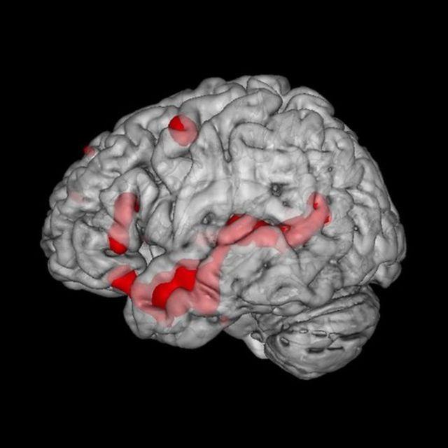 En rojo, las regiones del cerebro que se activan durante la lectura de historias de ficción.