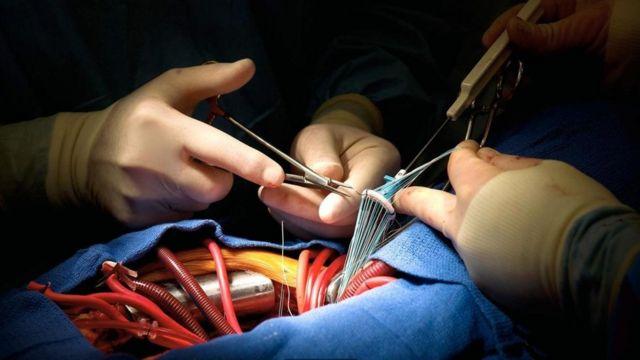 Médicos costuram coração