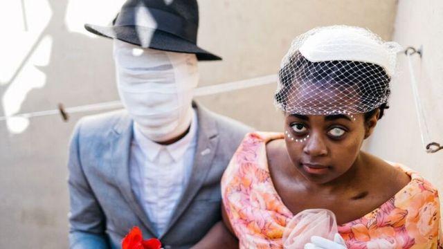 المصور تسوكو مائيلا يظهر رجلا وضمادة على وجهه وامرأة بعين زجاجية وكلاهما يرتدي زيا أنيقا