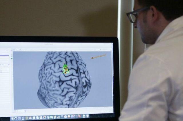 Imagem de cérebro em computador
