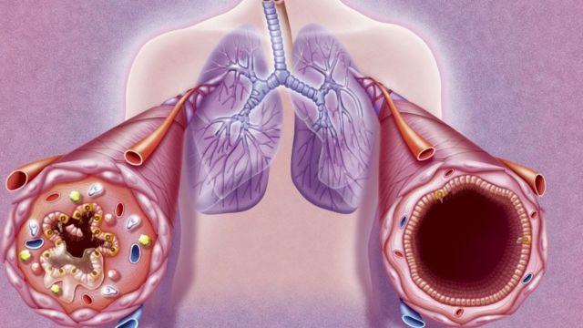 Le chant est bénéfique pour les personnes souffrant de maladies respiratoires.