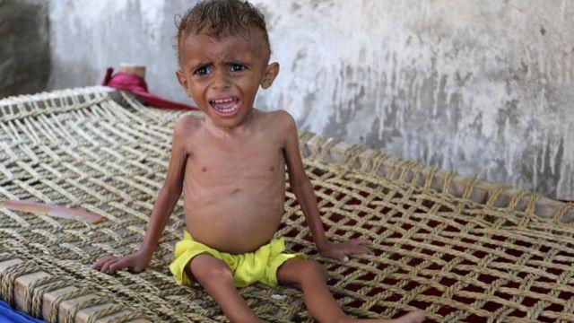 مخاطر المجاعة في اليمن