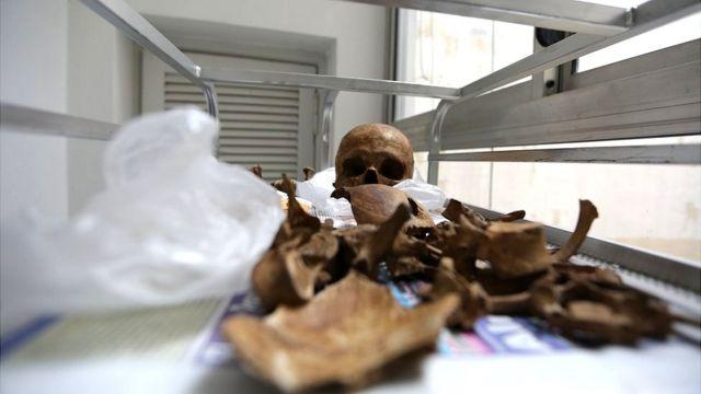 Varios restos de huesos sobre una bandeja metálica.