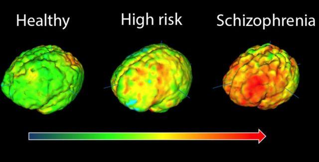 전문가들은 실험을 통해 조현병 환자에게 뇌의 피질 부피 감소 같은 뇌 기능 이상이 발생하는 것을 밝혀냈다